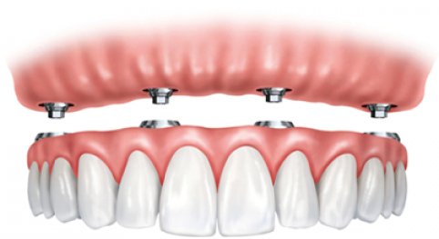 implantes-dentales1-2z99fkdrvv1upadmbsi1hc-1