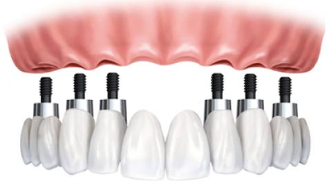 implantes-dentales1-2z99fkdrvv1upadmbsi1hc