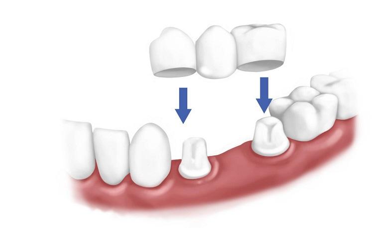 Rehabilitación mediante tallado de diente natural