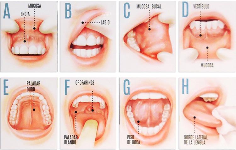 Exploración para la detección del cáncer oral