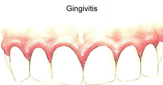 gingivitis-puede-causar-1983479