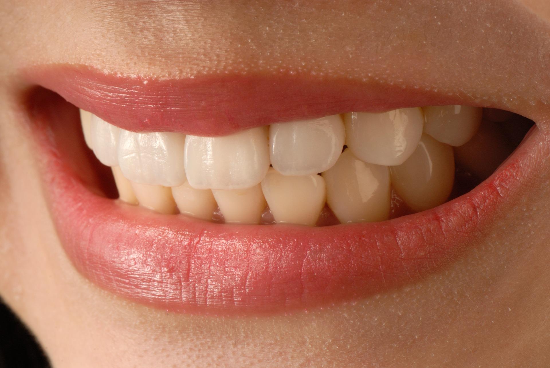 Cómo eliminar el sarro dental