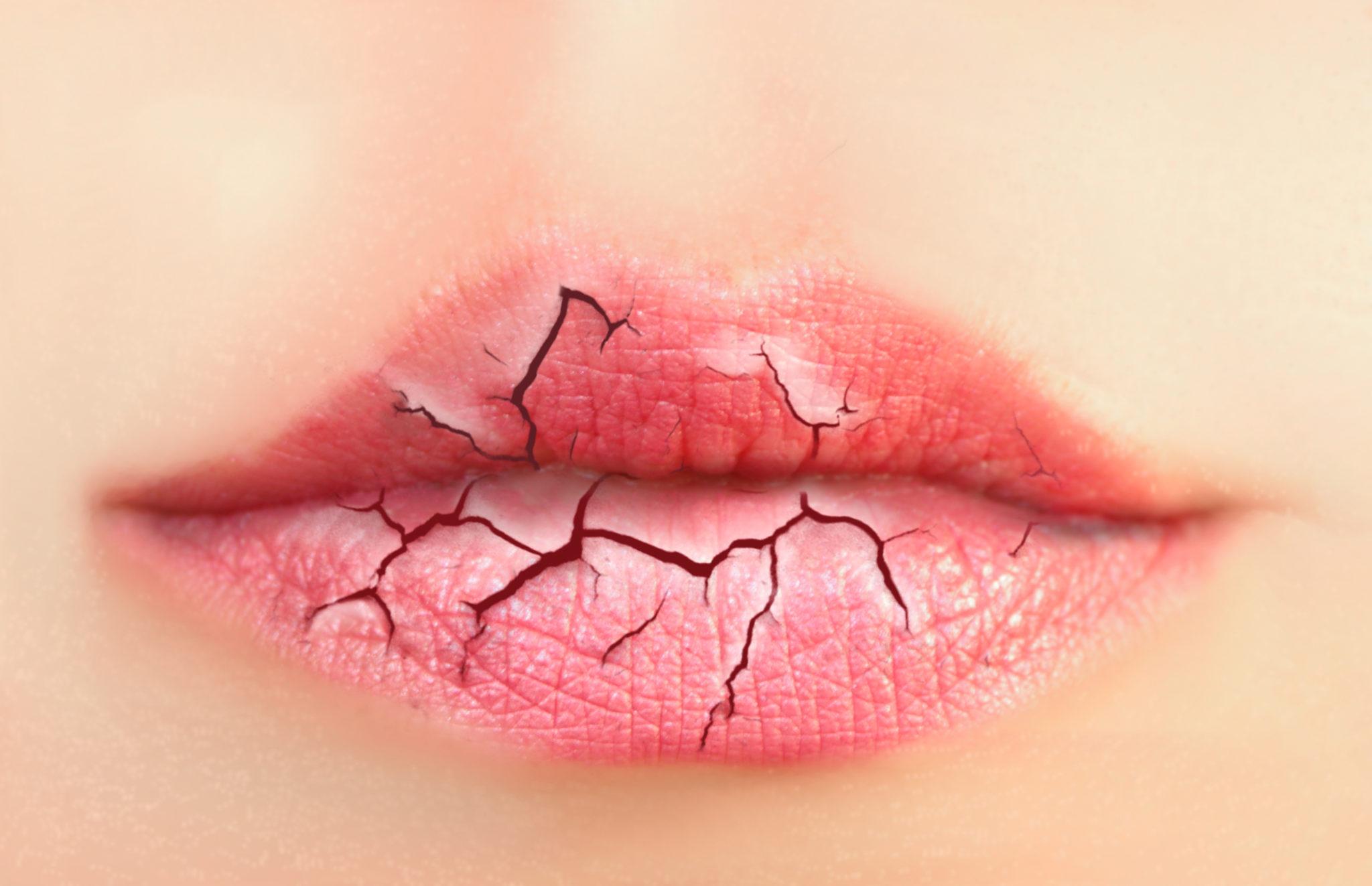 Xerostomía o sequedad buca